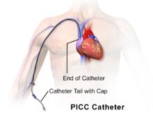 PICC Catheter
